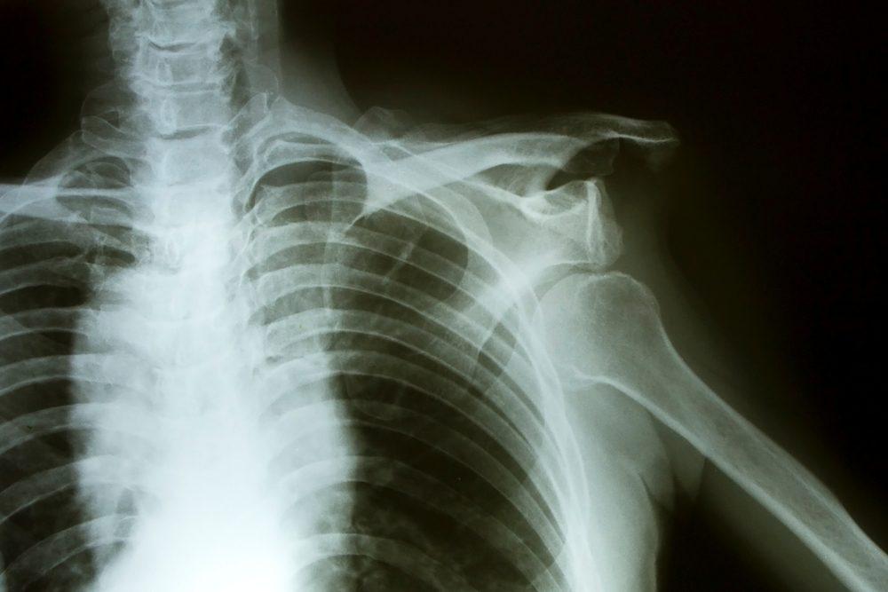 váll sérülések ízületi fájdalom ellen gyógyszer